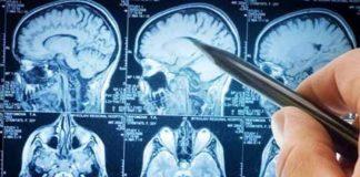 La Regione Calabria ha approvato il PDTA per la sclerosi multipla